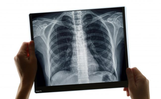 Examination of a chest x-ray